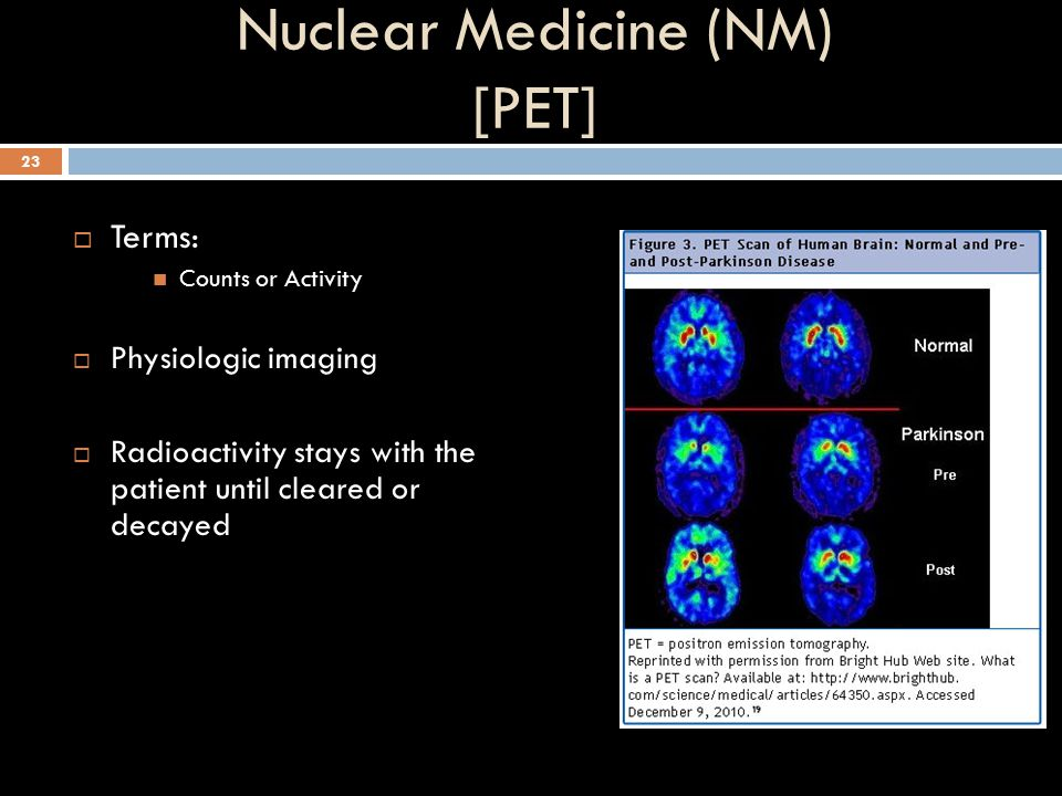 Nuclear Medicine (NM) [PET]
